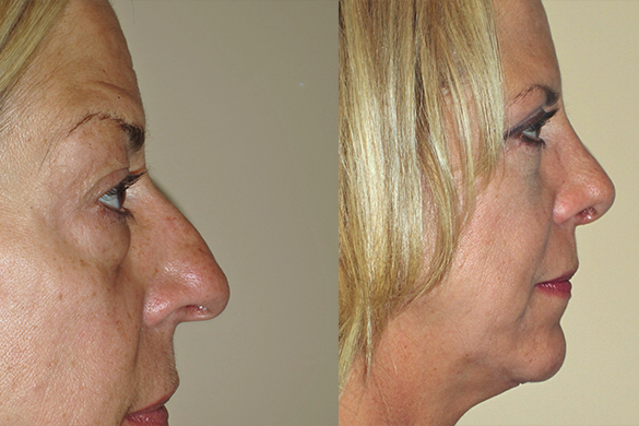 Eyelid Surgery Before & After Photos Right