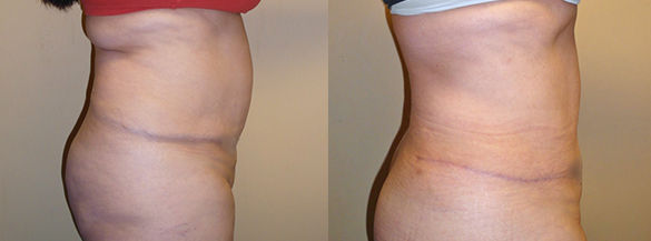 Abdomen Liposuction surgery Before & After Photos Right