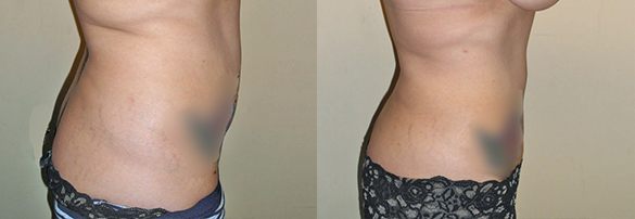 liposuction orange county Before & After Photos Right