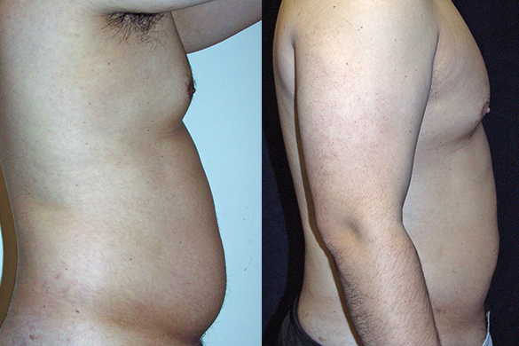 Abdomen, and Chest Liposuction Before & After Photos Right