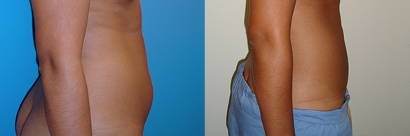 Liposuction Before & After Photos Right