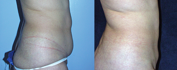 Abdomen, and Flanks liposuction Before & Afte Photos Right