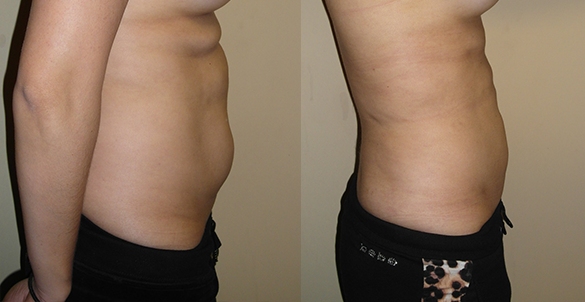 Abdomen, Flanks, and Back liposuction surgery Before & Afte Photos Right