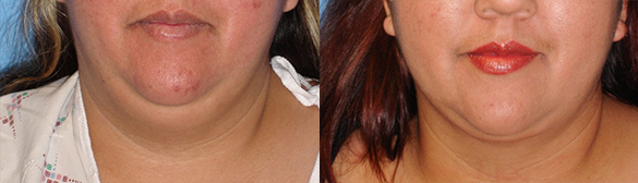neck Liposuction before and after photo front
