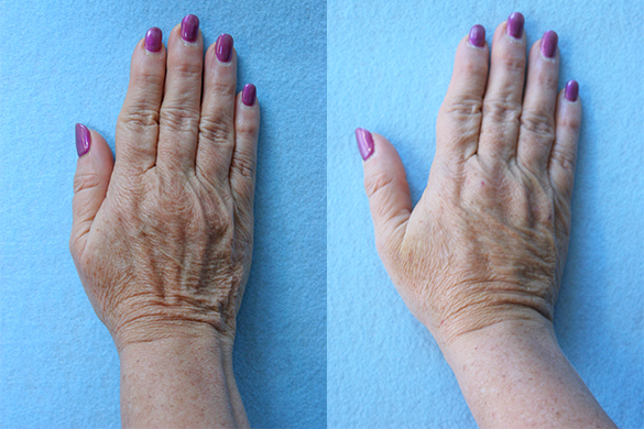 Hand Rejuvenation Before & After Photos Right Side
