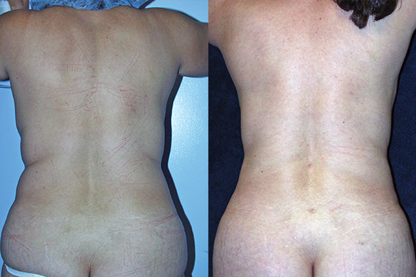 liposuction of abdomen and flanks performed Before & After Photos Back