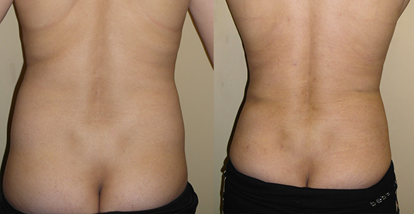 Abdomen, Flanks, and Back liposuction surgery Before & Afte Photos Back