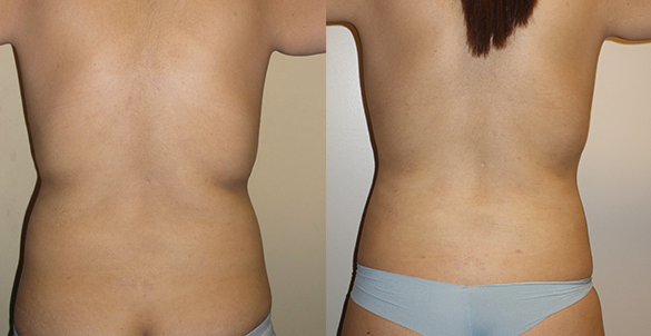 Abdomen, Flanks, and Back liposuction Before & Afte Photos Back