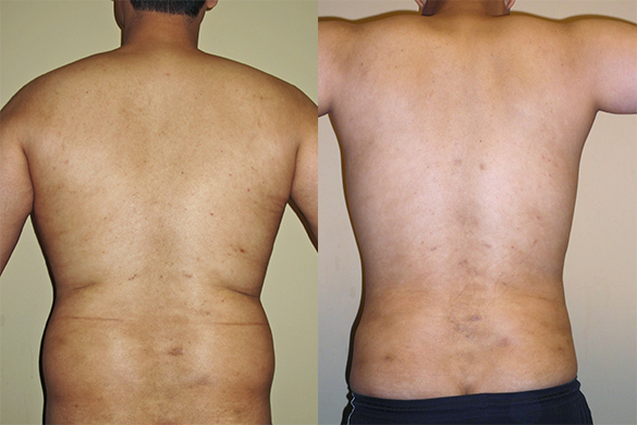 liposuction orange county Before & Afte Photos Back