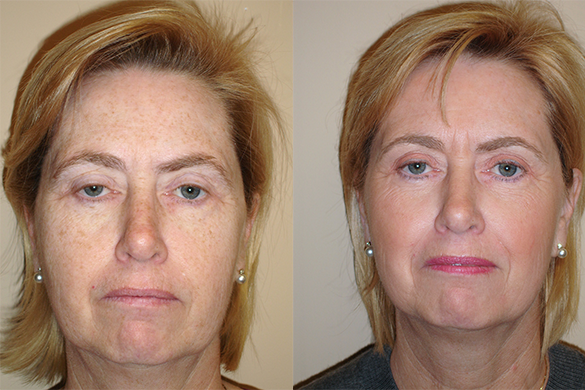 Laser Resurfacing Before & After Photos