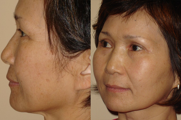 Laser Resurfacing Before & After Photos Left Side