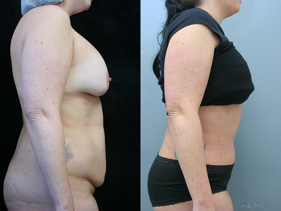 Tummy Tuck Before & After Photos Right Side