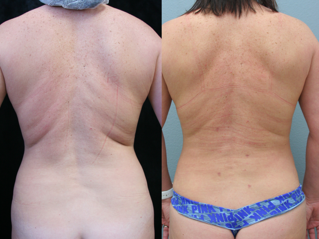 Liposuction Orange County Before & After Photos