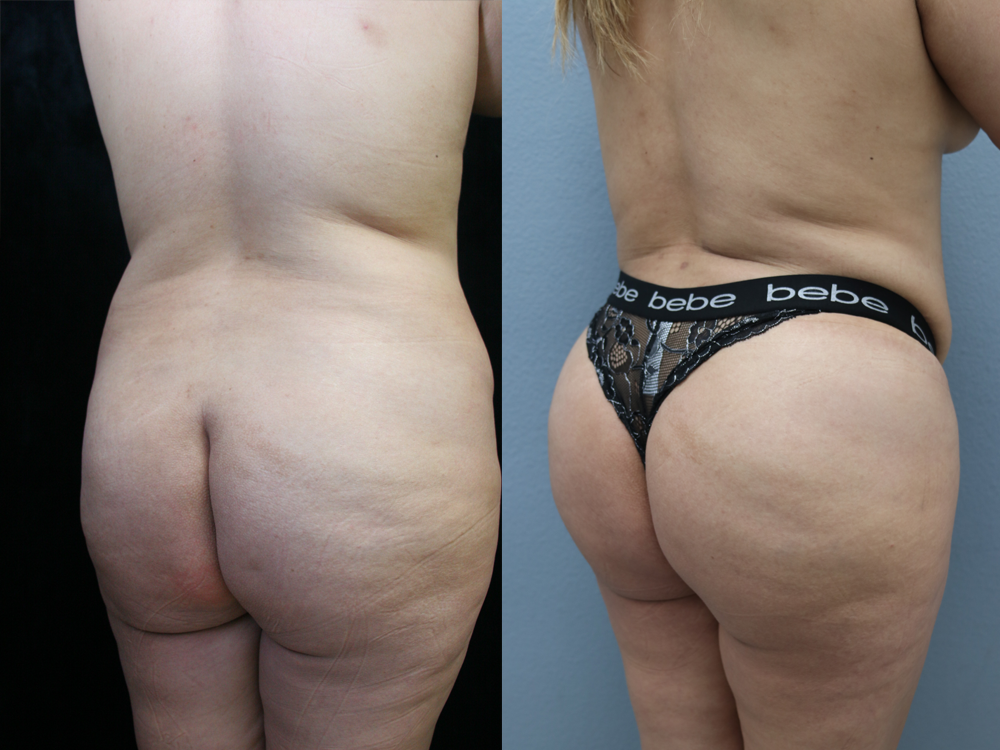 Brazilian Butt Lift Before & After Photos Right Side