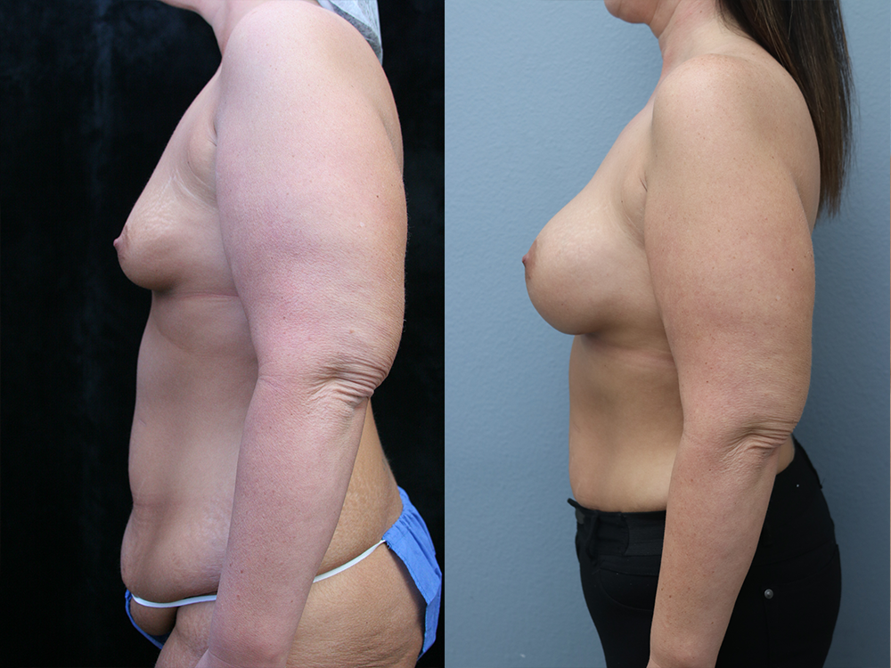 Breast Augmentation with Asymmetry Before & After Photos Left Side