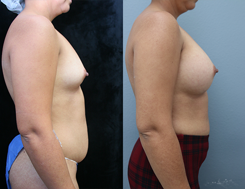 Breast Augmentation with Asymmetry
