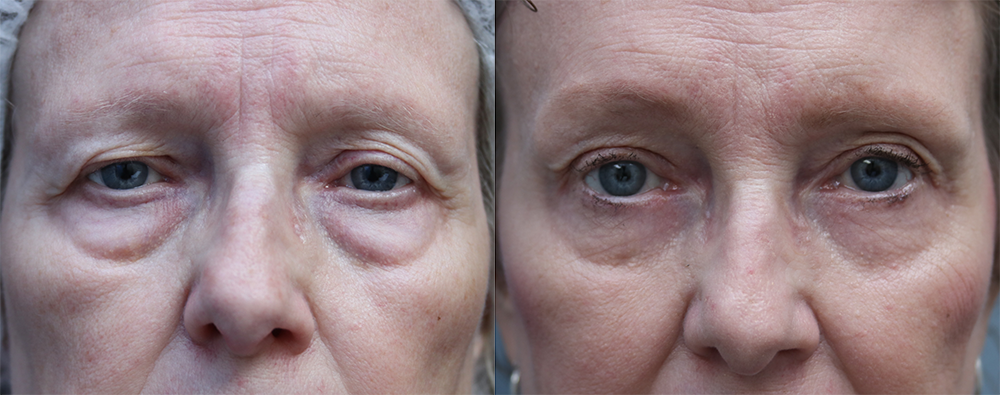 Brow Lift Orange County Before & After Photos