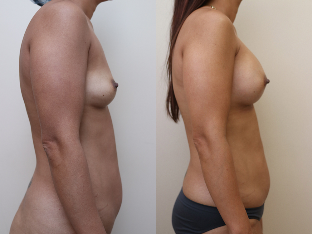 Breast Augmentation Before & After Photos Right Side