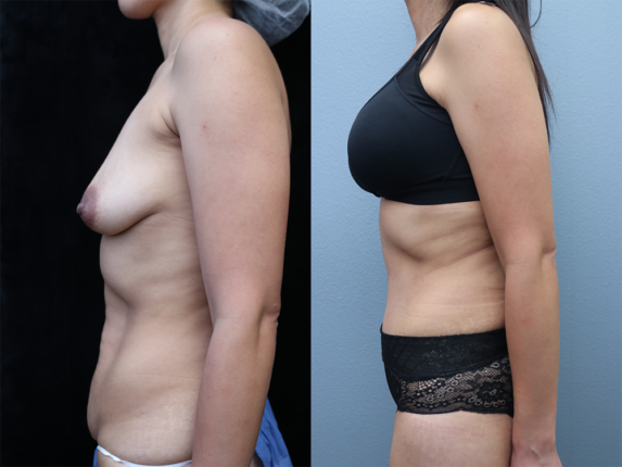 Tummy Tuck Before & After Photos Left Side