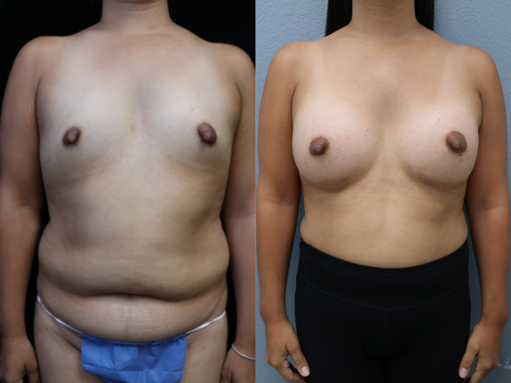 Breast Augmentation with Asymmetry Before & After Photos