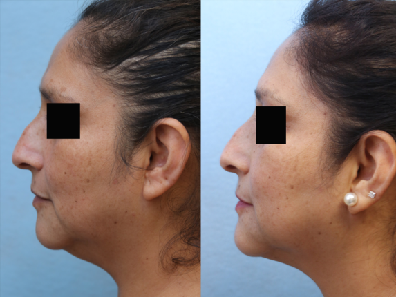 Liposuction Before & After Photos Left Side