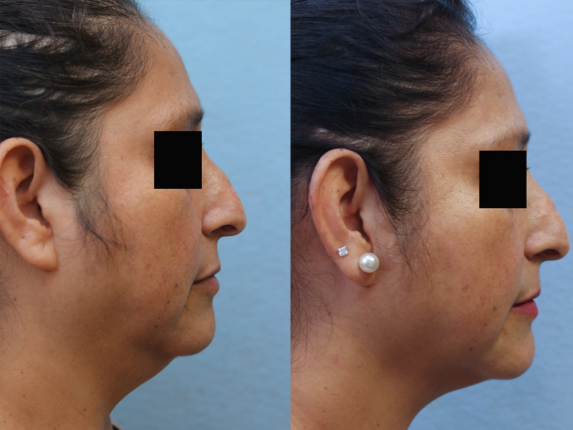 Liposuction Before & After Photos Right Side