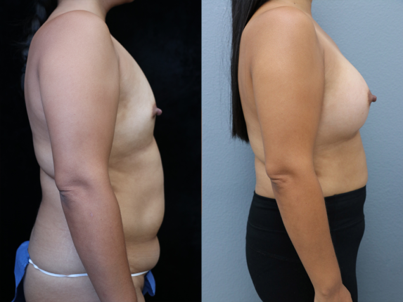 Breast Augmentation with Asymmetry Before & After Photos Right Side