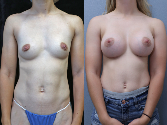 Breast Augmentation Before & After Photos Front Side