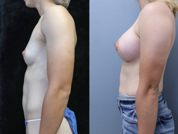 Breast Augmentation Before & After Photos Left Side