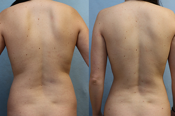 Abdomen and Flanks Liposuction front