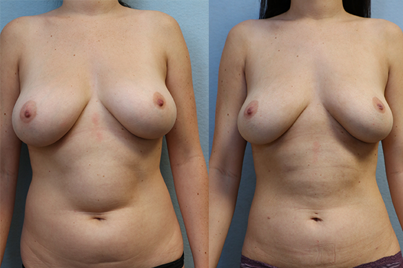 Abdomen and Flanks Liposuction before and after photos - front