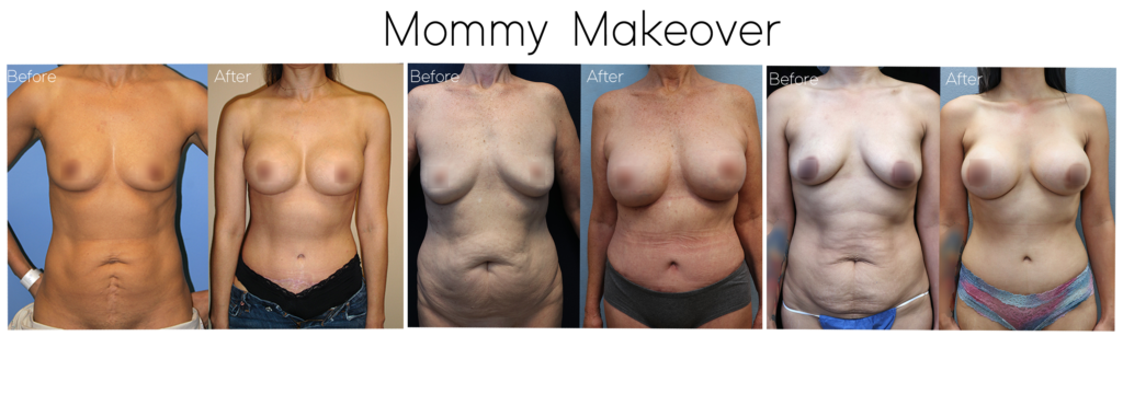 mommy makeover plastic surgery