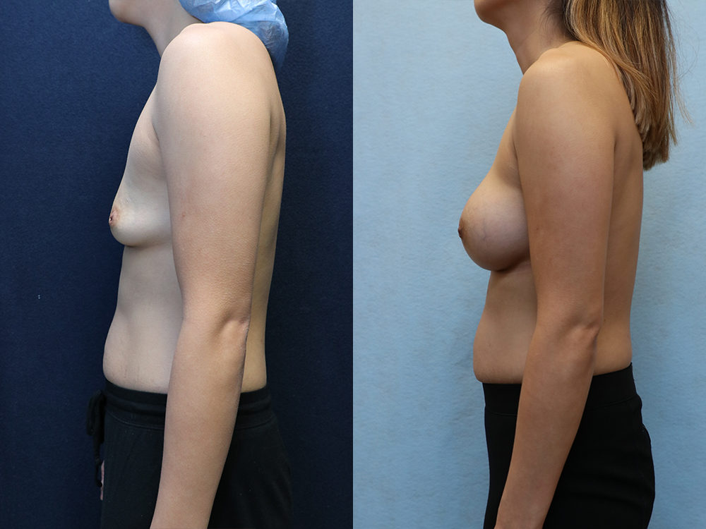 Breast Augmentation with Asymmetry before and after photos left