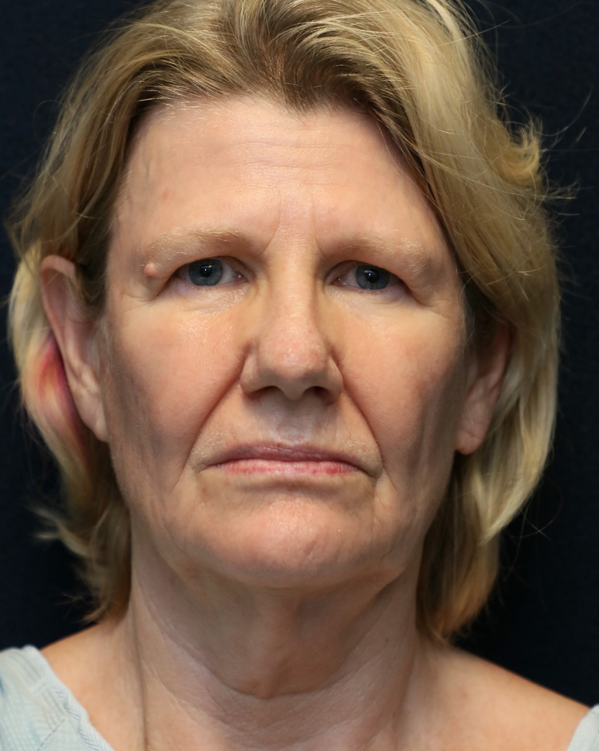 face lift neck lift before photo