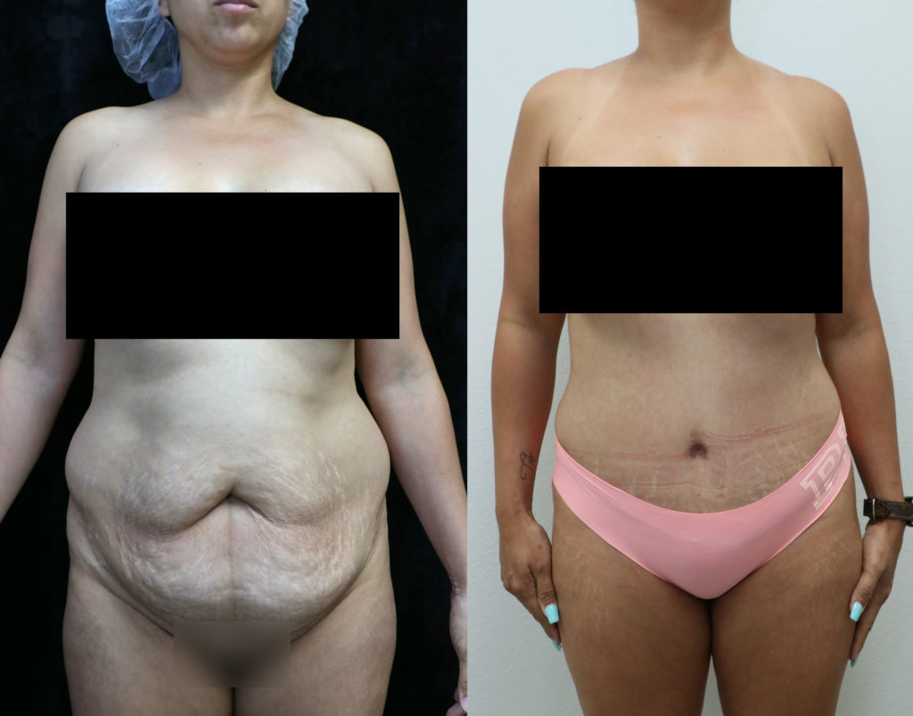 tummy tuck orange county before and after photos