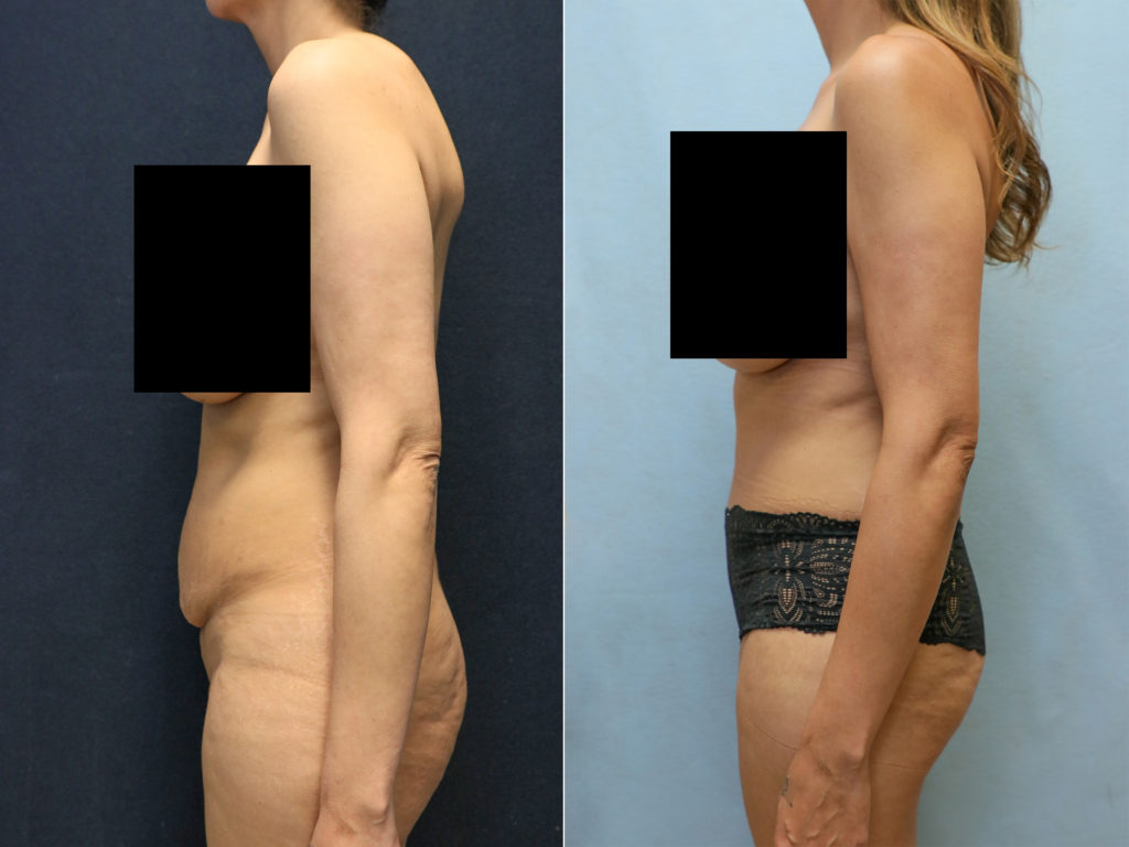 tummy tuck in orange county before and after