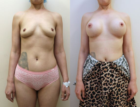 Breast Augmentation front