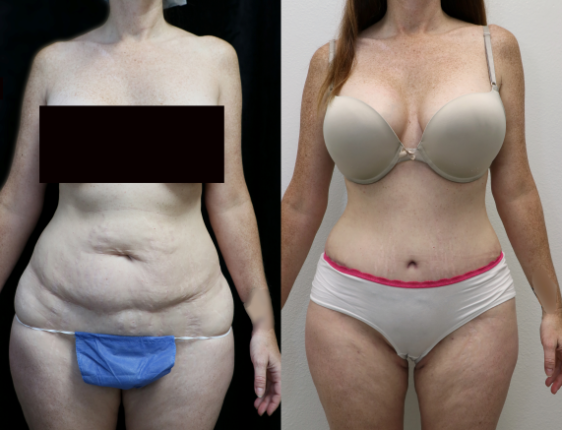 before and after photos of abdominoplasty