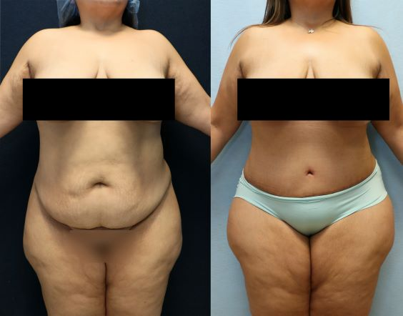 before and after photos abdominoplasty