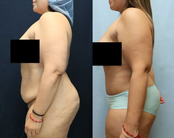 before and after abdominoplasty results left