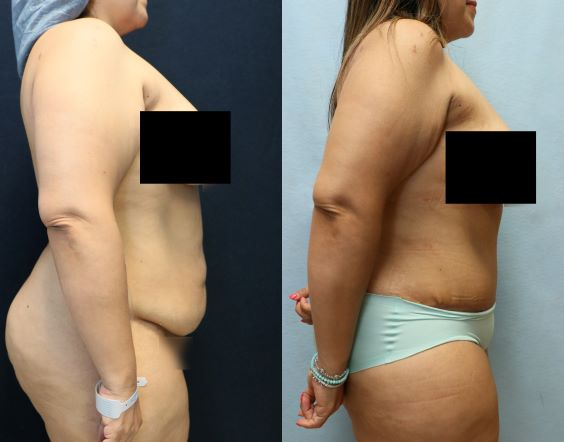 before and after abdominoplasty results right