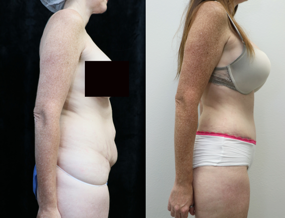 before and after photos of abdominoplasty right