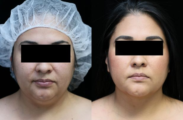 neck liposuction front before and after