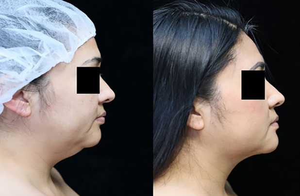 neck liposuction before and after photos right