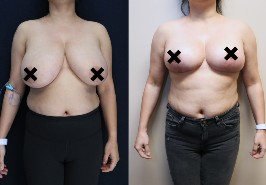 bilateral breast reduction before and after front