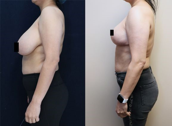 bilateral breast reduction before and after left