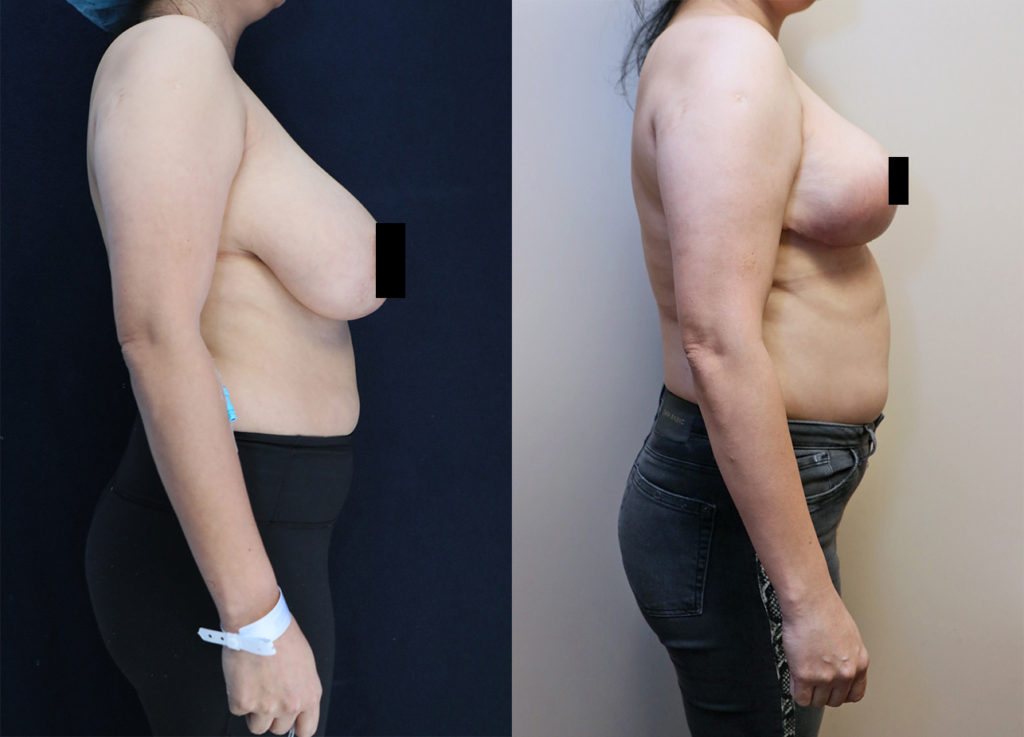 bilateral breast reduction before and after right