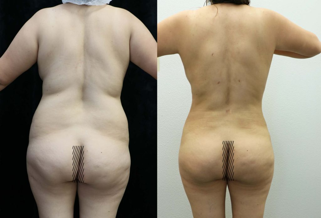 liposuction and fat transfer to buttocks