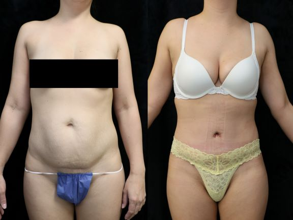 tummy tuck front