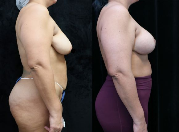 breast lift and augmentation before and after right side photos